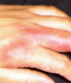 丹毒的早期症状有哪些如何有效护理