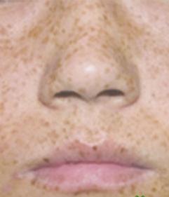 雀斑的病因以及治疗雀斑的注意事项