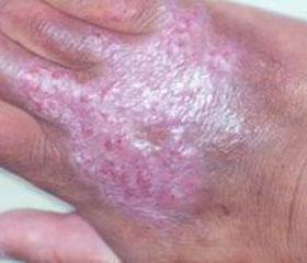 寻常狼疮的症状及治疗方法有哪些?