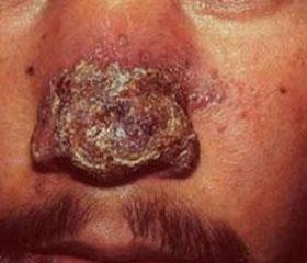 如何治疗寻常狼疮及疮会传染吗?