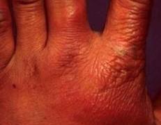 应该怎样做好对于丹毒症状的护理