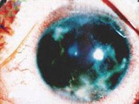 带状疱疹引起的角膜炎要做哪些检查