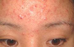 少女青春痘预防方法有哪些?