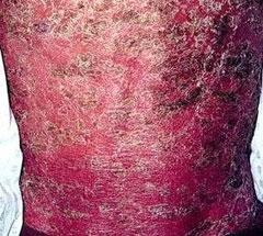 怎样鉴别诊断红皮型牛皮癣?