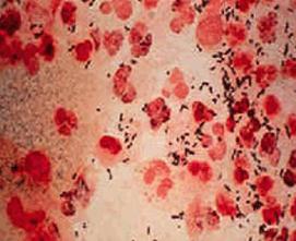 女性患有淋病有什么症状?
