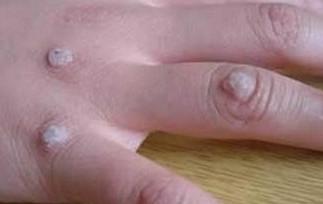 传染性软疣和感染有关系吗
