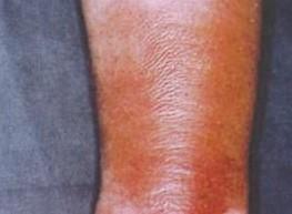 要警惕下肢丹毒症状复发