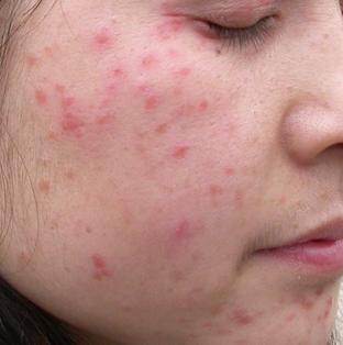 治疗皮炎有效的方法是什么?