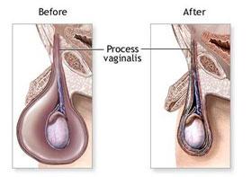 腹股沟肉芽肿是性传播疾病吗?
