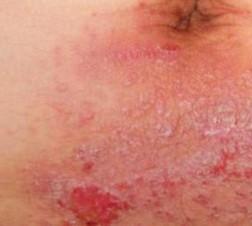 成人在护理疥疮时需要注意什么?