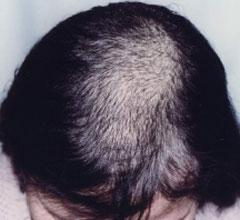 病理性脱发检查诊断的方法是什么