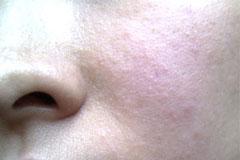 酒后皮肤过敏治疗误区?
