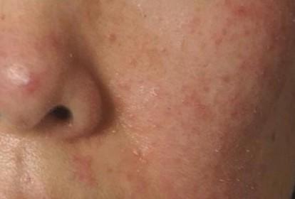 女性皮肤瘙痒症患者如何护理?