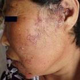 老年人带状性疱疹的症状表现是什么