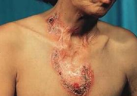 寻常狼疮有什么样的诊断表现?