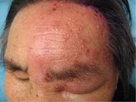 星星专家详解老年带状性疱疹症状