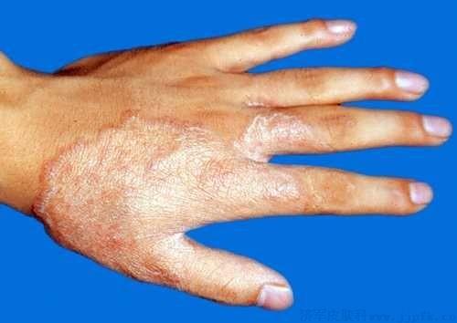 手癣容易与哪些皮肤病混淆呢?