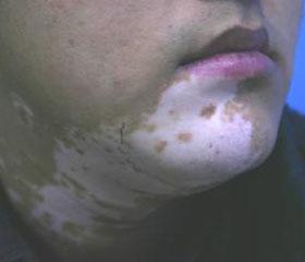 北京密云专家谈嗓子发炎引起白癜风