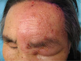 带状疱疹病为什么易发于老年人?