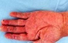 手足癣的流行特征是什么?