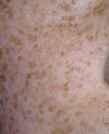 甘肃皮肤病专家介绍雀斑早期症状