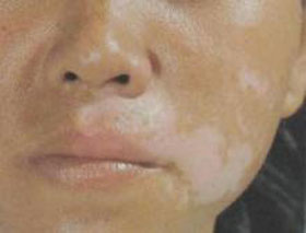 内蒙古专家介绍白癜风发病机制