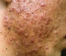 丘疹性痤疮的症状表现都有哪些呢?