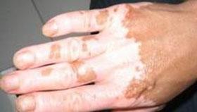 沈阳皮肤病专家介绍白癜风发病原因