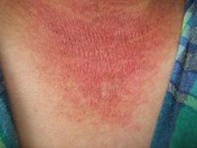 红斑狼疮病发的原因是什么