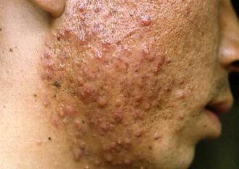 快速祛痘祛疤的痤疮特色疗法