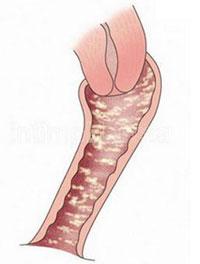 细菌性阴道病有哪些症状
