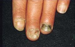 哪些因素是引发灰指甲的病因?