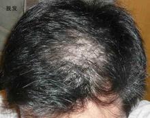 北京是怎么鉴别诊断脱发的?