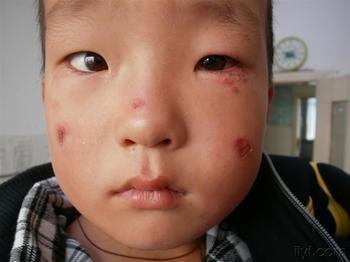 预防儿童患上脓疱疮需要怎么做?