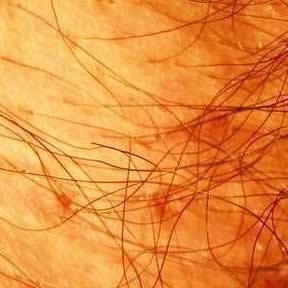 男性怎样治疗阴虱才能够不复发?