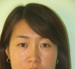 女性患上黄褐斑是什么原因引起的?