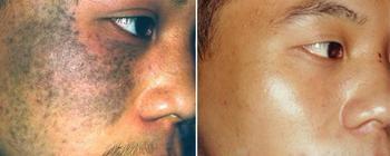 黄褐斑发生以后会出现什么症状?