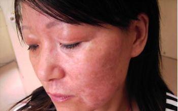 脸部牛皮癣会有什么症状表现?