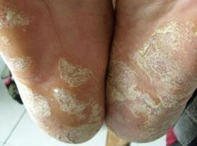 鳞屑角化型手足癣如何治疗