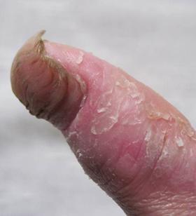 水泡型手足癣如何治疗?