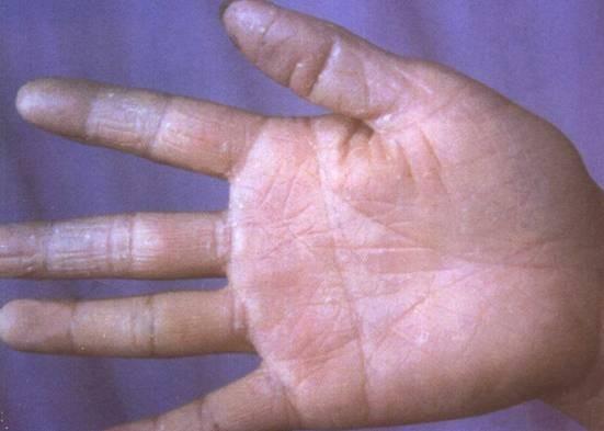 角化型手足癣是什么样的呢?