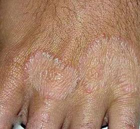 手足癣会传染吗?