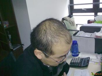脱发治疗认识脱发的治疗方法重要吗