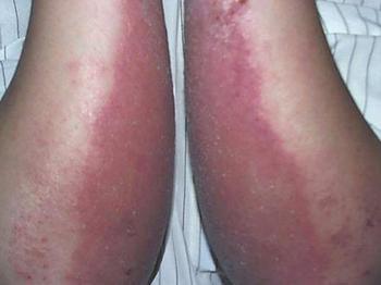 日常患了皮炎应如何医治