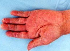 哪里有先进的方法治疗手足癣?