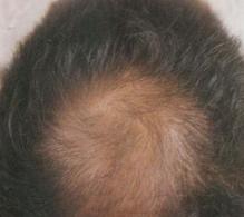 治疗脱发期间该怎么护理好?