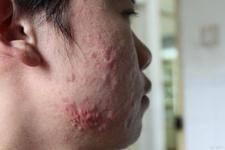 面部丘疹性痤疮的危害都有哪些