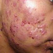 面部丘疹性痤疮的危害表现都有哪些