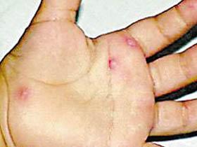 新生儿皮肤脓疱疮应该如何预防