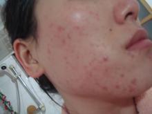 面部闭合性痤疮的临床表现都有哪些